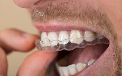 Hitta rätt bettskena för att lösa tandgnisslingsbesvären
